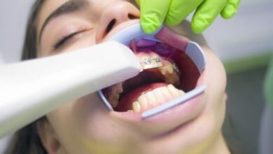 4 Problems Cosmetic Dentist Can Solve